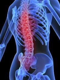 Prevent low back pain